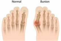 Bunions!! I Don't want Surgery!! / We all hate to admit we have them but bunions, or Hallux Valgus , but we do!! If you don't want or are not ready for surgery yet try out Meanfeet for bunion friendly footwear.  / by Meanfeet - Wide Fitting Comfort Shoes