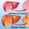 Salud: Hígado
