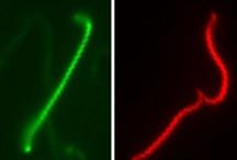 Zoonoses, leptospirose en images