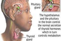 Hypothyroidism / Underactive thyroid