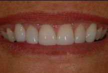 Before and After Pictures / Dramatically improve your smile with porcelain veneers!