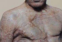 Injuries/Scars