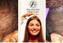 Alopecia/Hair Loss