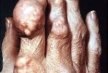 Living with gout / Things gout suffers can do in order to stay healthy to avoid gout attacks and increases in their uric acid levels.