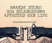 Inspirational People / Stories of people with Scleroderma