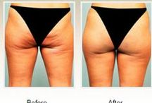 Cellulaze / Finally there is a lasting, one-time treatment to reduce the appearance of cellulite! Cellulaze is the first cellulite treatment approved by the FDA and shown to reduce cellulite for a year or longer with one treatment.