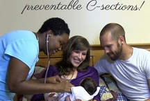 Midwife-led births prevent C-Sections