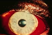 oculos / eye anomalies