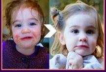 Kids Health and Nutrition (pediatrics)