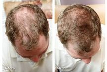 Laser Therapy for Hair Loss / So proud to offer our clients Theradome treatments! The Theradome is the first FDA OTC cleared, wearable clinical strength laser treatment that is proven to regrow hair.