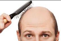 Hair Loss Treatment London