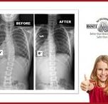 ScoliSMART Bootcamp / Halt progression - reduce the existing curvature Improve cosmetic appearance - reduce pain Improve breathing and function levels    Scoliosis BootCamp - for Scoliosis Curvatures 25º or Larger A 10-day treatment program designed to help patients with spinal curvature over 25 degrees
