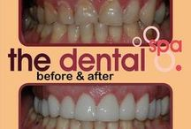 THE DENTAL SPA - Before & After / THE DENTAL SPA - Dr. Walter Reynecke - Another stunning smile make over - designed to dazzle patients.