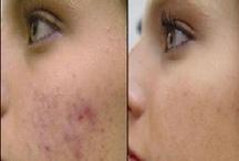 Health & Beauty tips