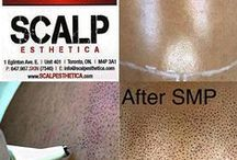 The Best SMP Scalp Micropigmentation Clinic in Toronto / Scalp Esthetica are the Leaders in Canada for Scalp Micropigmentation, and the Best and Only Clinic in Toronto that Specializes in Scalp Tattoo, Hair Tattoo, and SMP Hair Density Treatments. Call 647-967-7546