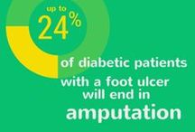 Diabetic Feet / Diabetes can affect many parts of the body, especially the feet and heels. It is very important that diabetics take special care of their feet.