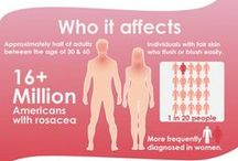 Rosacea & Redness Solutions / Information about the causes of rosacea and skin redness, along with natural and medical solutions to the troubling skin condition.