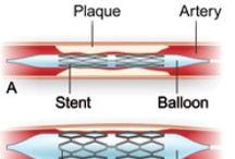 Heart Testing & Procedures