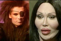Plastic Surgery Disasters / Before and after plastic surgery.