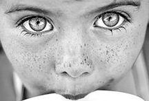 Freckles / Sun kisses