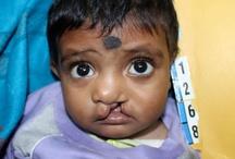 Treating Scars on Children