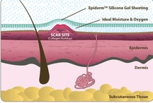 How Silicone Works on Scars / How Does it Work? Scars need an ideal healing environment, meaning the appropriate balance of moisture and maximum exposure to oxygen. Epi-derm silicone gel sheets for scars is a fully-encapsulating sheet — it completely covers the scar treatment site, making them the most effective silicone patches for scars. Although the entire site is covered, Epi-derm is semi-permeable, allowing oxygen to enter while keeping excess moisture out — the ideal environment for healing scars.