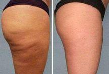 i-Lipo / Non Surgical Liposuction