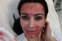 Vampire Facelift / Plasma Rich Protein Infused Facial Treatment to Provide Lift and Rejuvination.