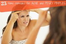 Home Remedies For Acne / How to get rid of acne.