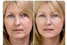 skin care / smooth skin, wrinkles, rejuvenation, under eye swelling, skin care