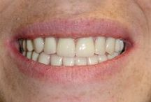 Dentures and More / Before and after photos of patients. See more at www.fldental.com