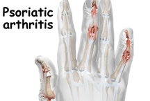 Arthritis & CRPS ~my life