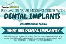 Infographics | Nambour Dentist / At Smiles Nambour – we care for your smile … Sunshine Coast Dentist Photos of INFOGRAPHICS in Nambour, Sunshine Coast.