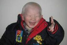 Español / Recursos sobre adopción y deficiencia visual en español / by Bethel China