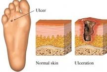 Voeten - Diverse Aandoeningen / Voor iedereen werkzaam in de 'voetenbranche', informatie over verschillende aandoeningen van de voeten.