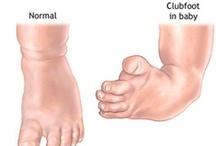 Klompvoet - Clubfoot