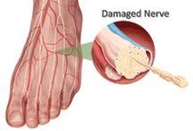 Voeten - Neuropathie, RLS, Foot drop & Morton's Neuroma
