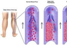Voeten - Bloedcirculatie