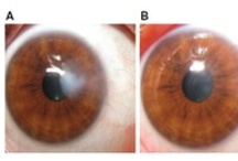 Diamond burr superficial keratectomy after pterygium excision / Diamond burr superficial keratectomy with application of mitomycin C is a potentially effective and simple procedure for treating patients with corneal scarring and high corneal astigmatism secondary to previous pterygium surgery.  Read this case series and sign up to receive Clinical Ophthalmology here: http://www.dovepress.com/articles.php?article_id=13138