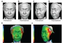 Objective assessment of water-filtered near-infrared skin tightening / Background: Near-infrared has been shown to penetrate deeper than optical light sources independent of skin color, allowing safer treatment for the Asian skin type.  Read this original research and sign up to receive Clinical, Cosmetic and Investigational Dermatology journal here: http://www.dovepress.com/articles.php?article_id=13481