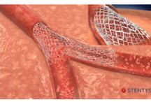 Advances in coronary stent technology / Abstract: The field of percutaneous coronary intervention has witnessed many advances over the last few decades that have served to make it a safe and effective treatment for patients with angina due to coronary artery disease.  Read this review and sign up to receive Research Reports in Clinical Cardiology journal here http://www.dovepress.com/articles.php?article_id=13525