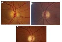 NAION secondary to angle closure / Purpose: To describe a case of non-arteritic ischemic optic neuropathy (NAION) secondary to acute primary-angle closure (APAC).  Read this case report and sign up to receive Clinical Ophthalmology journal here: http://www.dovepress.com/articles.php?article_id=13584