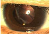 Alagille syndrome complicated by hegmatogenous retinal detachment / Abstract: This case report describes a case of Alagille syndrome with developing intraocular lens subluxation and rhegmatogenous retinal detachment 4 years after cataract surgery. A 15-year-old female patient with Alagille syndrome-associated cataracts in both eyes underwent phacoemulsification aspiration and intraocular lens implantation.  Read this case report and sign up to receive Clinical Ophthalmology journal here: http://www.dovepress.com/articles.php?article_id=13683