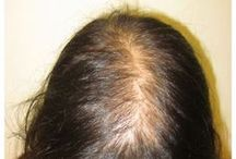 Perspectives on female pattern alopecia / Abstract: Female pattern hair loss has a strikingly overwhelming psychological effect; thus, successful treatments are necessary.  Read this review and sign up to receive International Journal of Women's Health here: http://www.dovepress.com/articles.php?article_id=14203