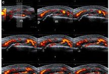 Doppler ultrasound in assessment of synovitis / Abstract: One of the most exciting advances is the use of Doppler ultrasound imaging in the assessment of blood flow abnormalities at the synovial tissue level in patients with chronic inflammatory arthritis.  Read this review and sign up to receive Reports in Medical Imaging journal here: http://www.dovepress.com/articles.php?article_id=14272