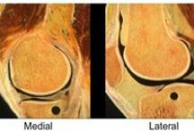 Meniscectomy / Abstract: Meniscal injuries are among the most frequent reasons for knee problems.  Read this review and sign up to receive Orthopedic Research and Reviews journal here: http://www.dovepress.com/meniscectomy-indications-procedure-outcomes-and-rehabilitation-peer-reviewed-article-ORR