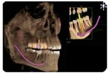 Dental cone-beam CT / Abstract: Panoramic radiography and computed tomography were the pillars of maxillofacial diagnosis. With the advent of cone-beam computed tomography, dental practice has seen a paradigm shift.  Read this review and sign up to receive Clinical, Cosmetic and Investigational Dentistry journal here: http://www.dovepress.com/clinical-utility-of-dental-cone-beam-computed-tomography-current-persp-peer-reviewed-article