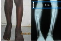 Limb lengthening in Africa / Background: We present a case of lengthening of a tibia to treat postosteomyelitis pseudarthrosis and limb length discrepancy by the Ilizarov device.  Read this case report and sign up to receive Orthopedic Research and Reviews journal here: http://www.dovepress.com/limb-lengthening-in-africa-tibial-lengthening-indicated-for-limb-lengt-peer-reviewed-article