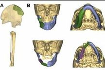 Computer-assisted primary mandibular reconstruction / Conclusion: Virtual surgical planning is an effective method for mandibular reconstruction with vascularized bone flaps, and can help to restore the anatomy of the mandible with high accuracy in position and shape.  Read this original research and sign up to receive Medical Devices: Evidence and Research journal here: http://www.dovepress.com/the-accuracy-of-computer-assisted-primary-mandibular-reconstruction-wi-peer-reviewed-article