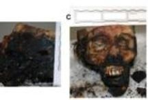 Dental restorative biomaterials and criminalistics / Abstract: The body of an 89-year-old woman was discovered at home by a member of her family. Only part of the body, the legs, were found intact without burn damage.  Read this case report and sign up to receive Research and Reports in Forensic Medical Science journal here: http://www.dovepress.com/articles.php?article_id=17304